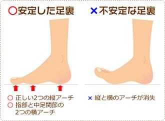図:安定した足裏と不安定な足裏