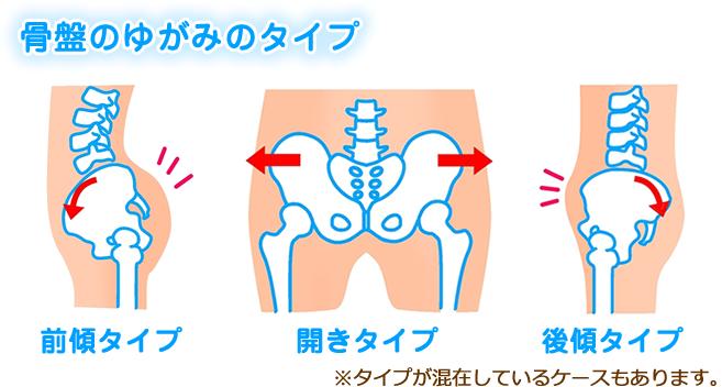 松山市・砥部町すこやか整骨院松山砥部院:骨盤のゆがみのタイプの図